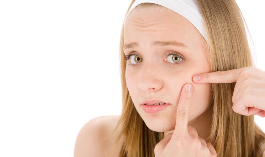 Dieta per combattere l'acne